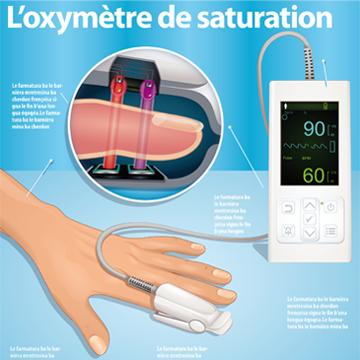 Illustration technique d'appareil médical